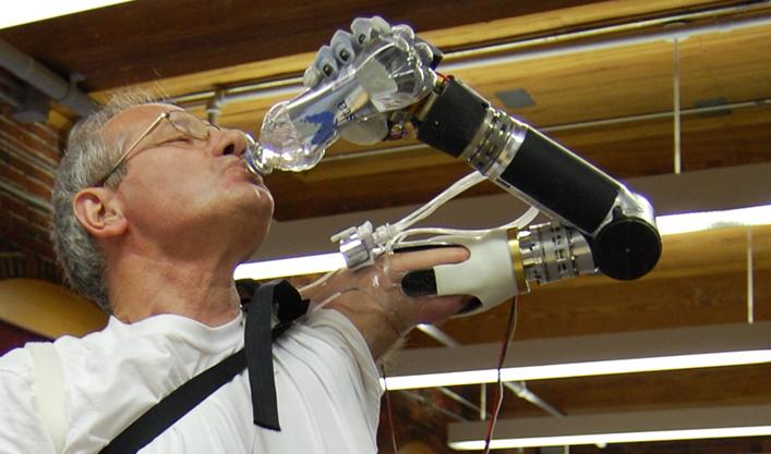 bras bionique_DEKA Arm